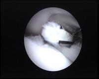 Extracción de un fragmento desprendido de cartílago en un caso de displasia de codo